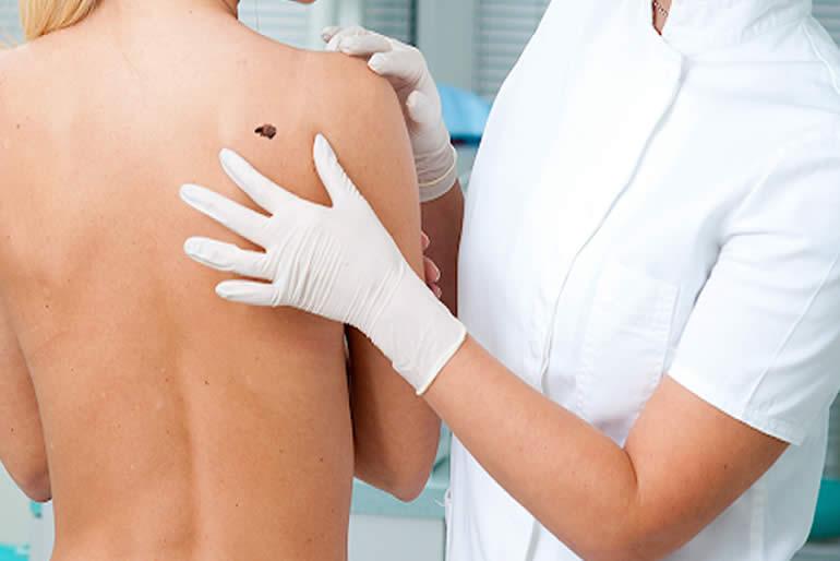 Importante-la-atencion-dermatologica-en-pacientes-oncologicos-fmd-2.jpg