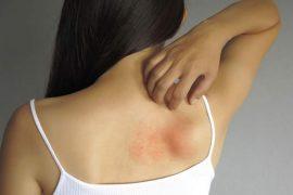 padecen-dermatitis-atopica-15-de-los-adolescentes-mexicanos-1.jpg