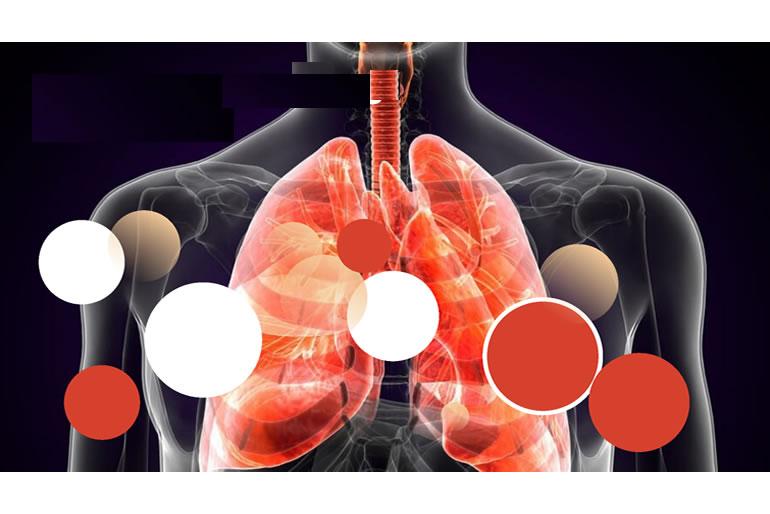 impulsan-campana-para-sensibilizar-sobre-la-hipertension-pulmonar-2.jpg