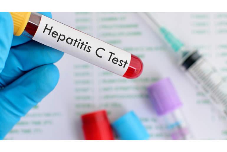 la-hepatitis-c-afecta-a-casi-500-mil-mexicanos-2.jpg